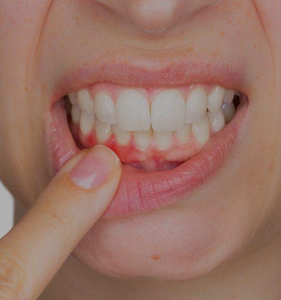 Periodontal Care   Memorial Square Dental   NE Calgary Dentist