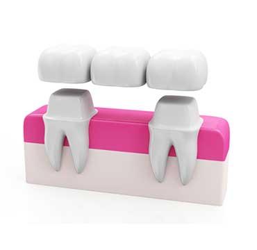 Dental Bridges | NE Calgary Dentist | Memorial Square Dental Clinic