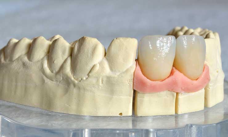 Dental Crowns | NE Calgary Dentist | Memorial Square Dental Clinic