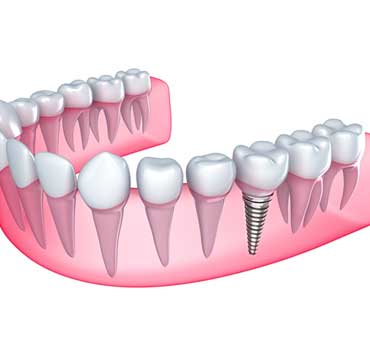 Dental Implants | NE Calgary Dentist | Memorial Square Dental Clinic