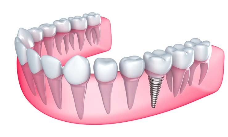 NE Calgary Dental Implants | Memorial Square Dental Clinic