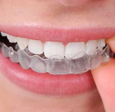 Invisalign Clear Aligners | NE Calgary Dentist | Memorial Square Dental Clinic