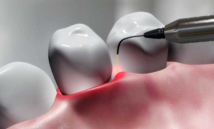 Laser Dentistry | NE Calgary Dentist | Memorial Square Dental Clinic