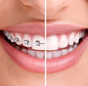 Orthodontic Dentistry | NE Calgary Dentist | Memorial Square Dental Clinic