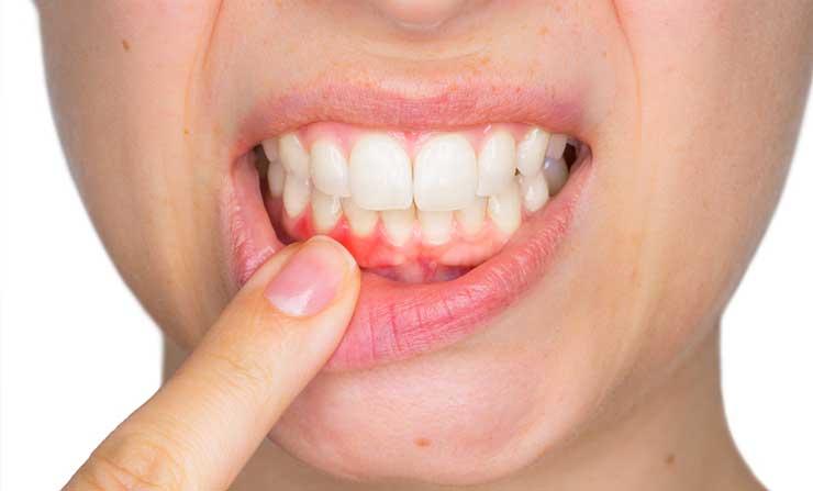 Periodontal Care | NE Calgary Dentist | Memorial Square Dental Clinic