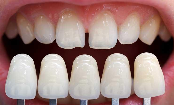 Porcelain Veneers | NE Calgary Dentist | Memorial Square Dental Clinic