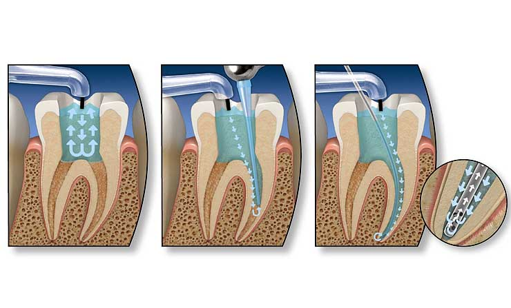 Root Canal Therapy | NE Calgary Dentist | Memorial Square Dental Clinic