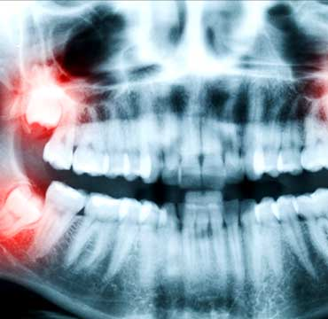 Wisdom Teeth Extractions | NE Calgary Dentist | Memorial Square Dental Clinic