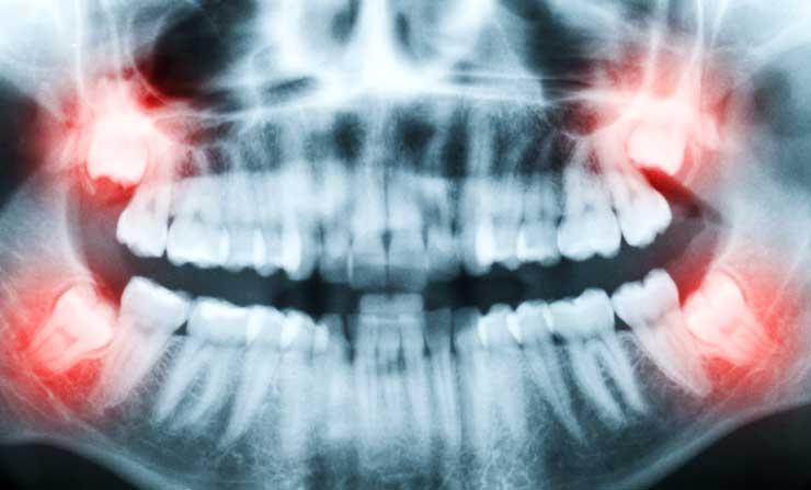Wisdom Teeth Extraction | NE Calgary Dentist | Memorial Square Dental Clinic