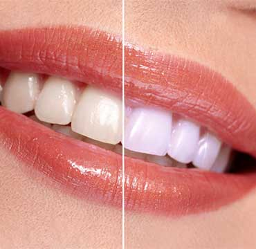 Zoom Teeth Whitening | NE Calgary Dentist | Memorial Square Dental Clinic