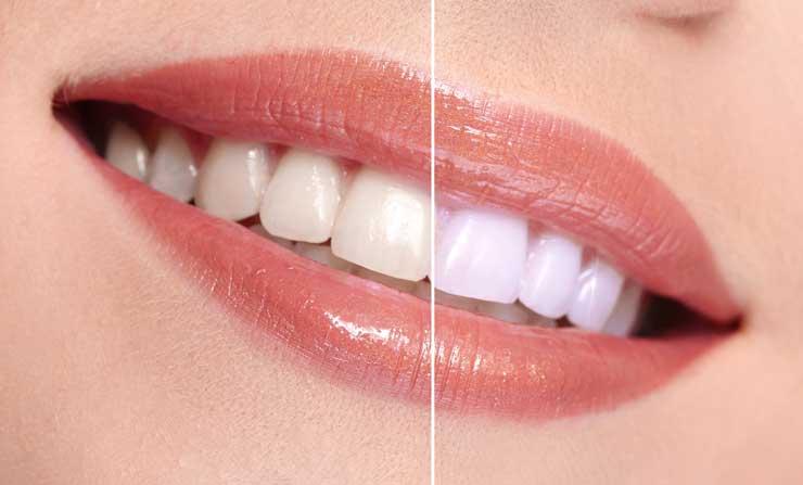 Zoom Teeth Whitening | NE Calgary Dentist | Memorial Square Dental Clinic